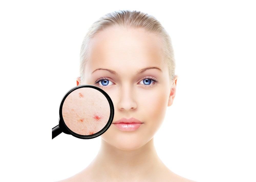 acne-health